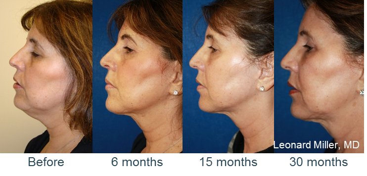 Non Surgical Skin Tightening using Injectible RF